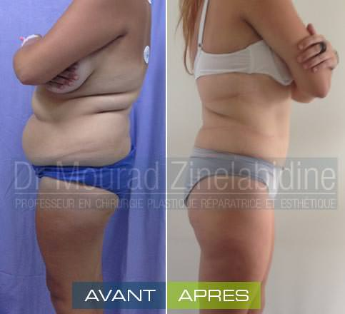 photo avant/après l'abdominoplastie tunisie