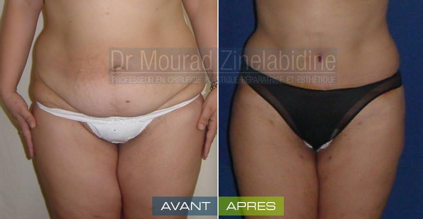 photos abdominoplastie tunisie