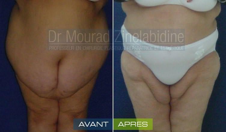 photos/après abdominoplastie tunisie