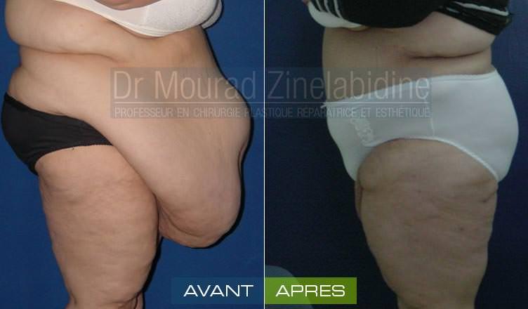 avant/après abdominoplastie tunisie