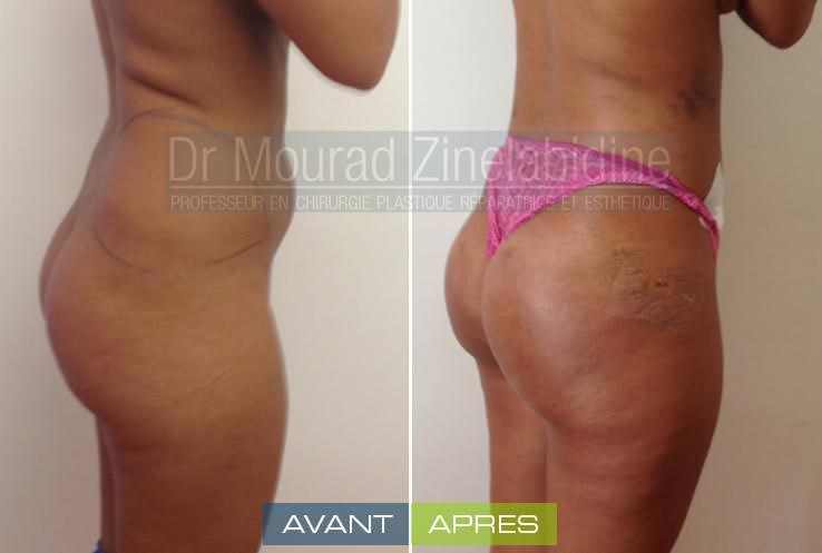 photo avant/aprés lipofilling fesses tunisie