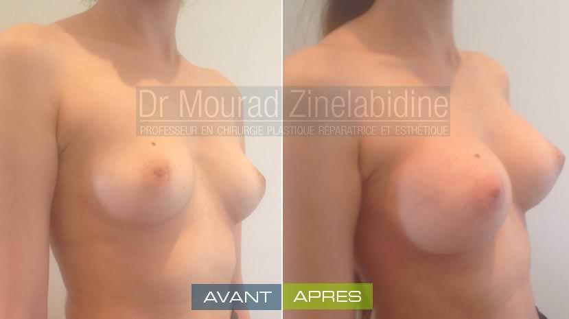 avant aprés lipofilling des seins tunisie