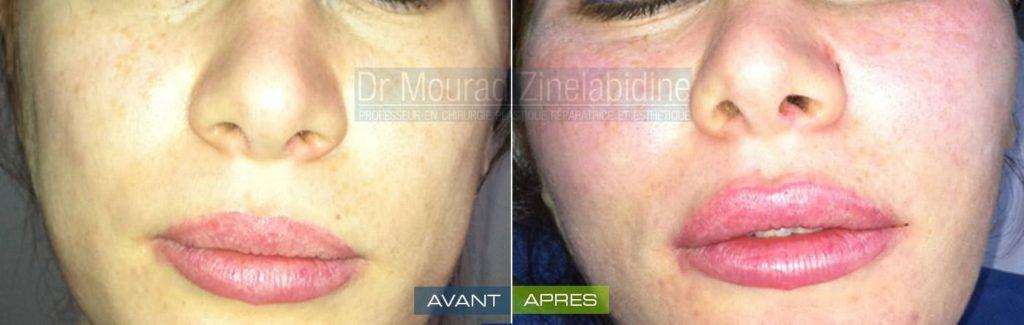 lipofilling visage tunisie