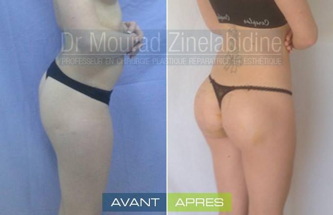 avant/aprés protheses fesses tunisie