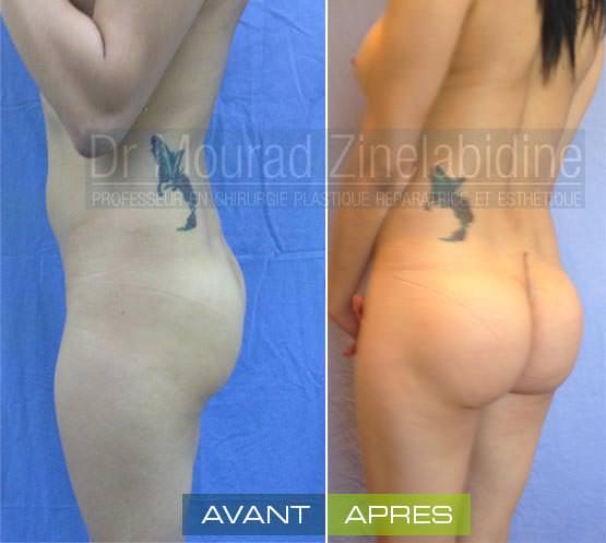 protheses fesses tunisie