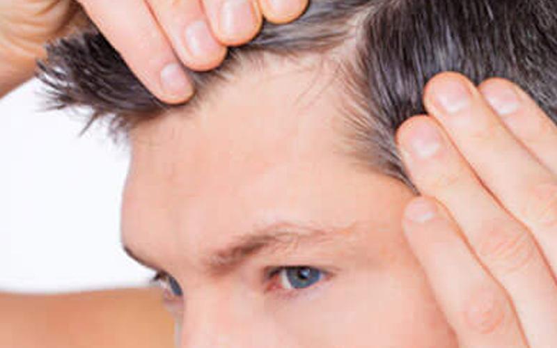 greffe-cheveux-fue-tunisie