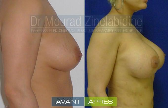 avant et aprés l'augmentation mammaire tunisie