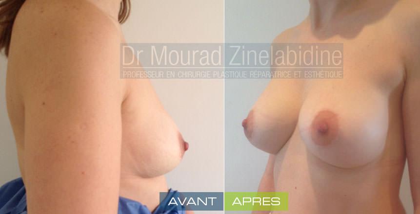 augmentation mammaire tunisie avant/aprés