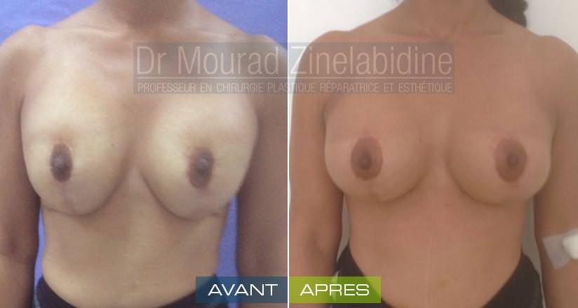 augmentation mammaire tunisie photo réel