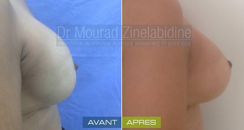 augmentation des seins tunisie