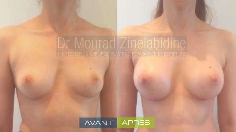avant/aprés l'augmentation mammaire tunisie