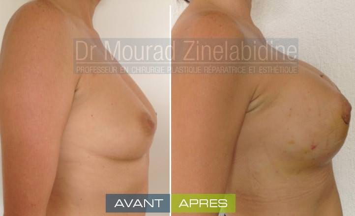 avant après l'augmentation mammaire tunisie