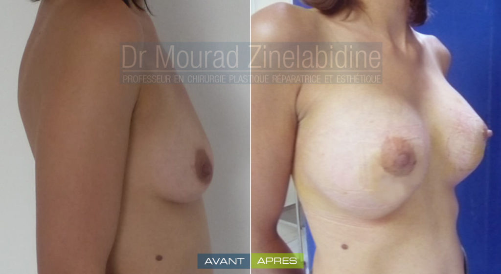 augmentation-mammaire-tunisie-photo-avant-apres-chirurgie-esthetique
