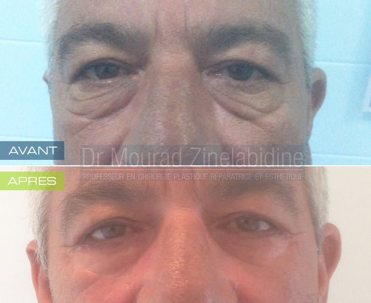 blepharoplastie-tunisie-photo-avant-apres-chirurgie-esthetique
