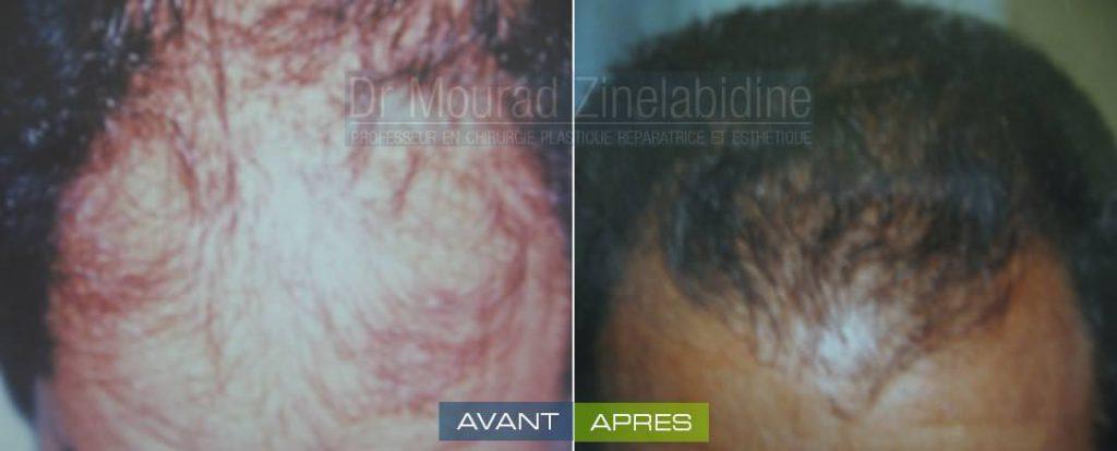 greffe-cheveux-tunisie-avant-apres