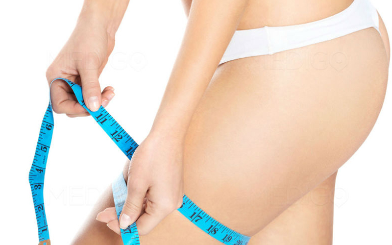 lifting-cuisses-tunisie-chirurgie-esthetique