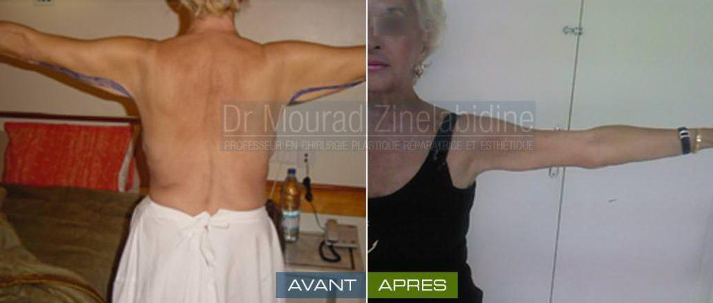 lifting des-bras tunisie