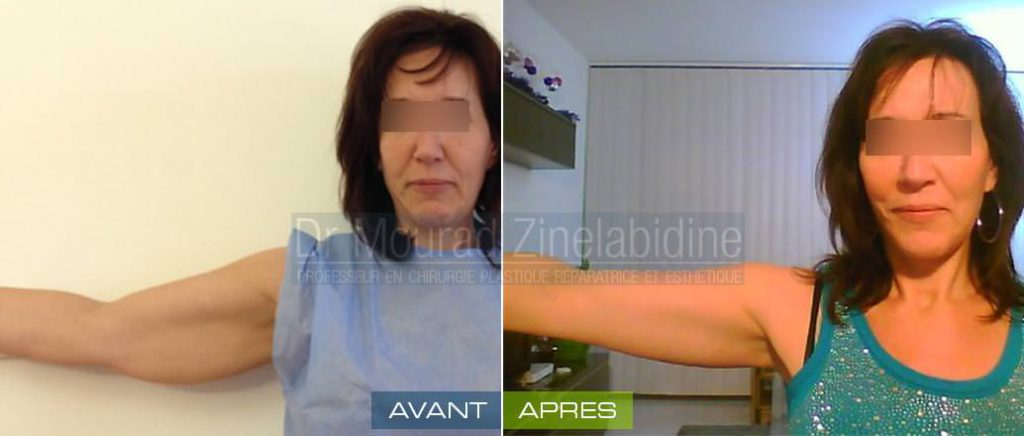 lifting bras tunisie