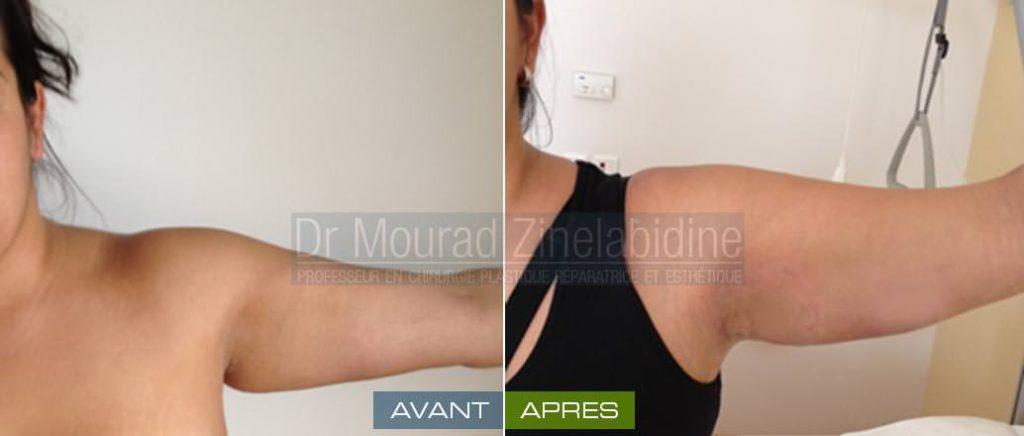 lifting des bras tunisie