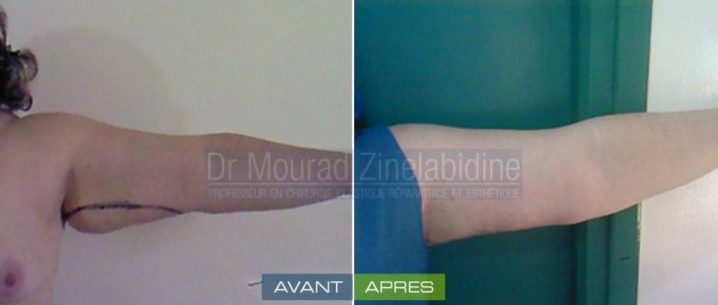 lifting-bras-tunisie-photo-avant-apres-chirurgie-esthetique