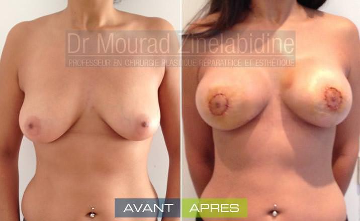lifting-mammaire-tunisie-photo-avant-apres-chirurgie-esthetique