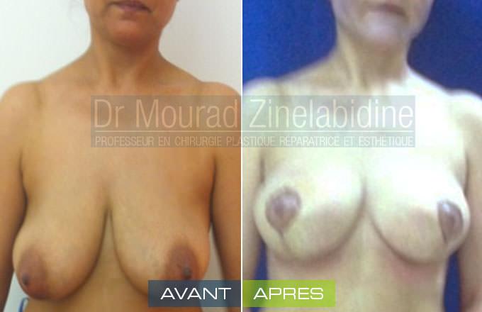 lifting-des-seins-tunisie-photo-avant-apres-chirurgie-esthetique
