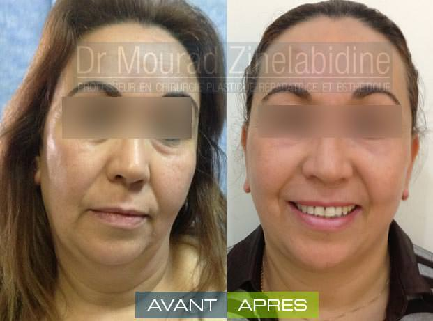 lifting-visage-tunisie-photo-avant-apres-chirurgie-esthetique