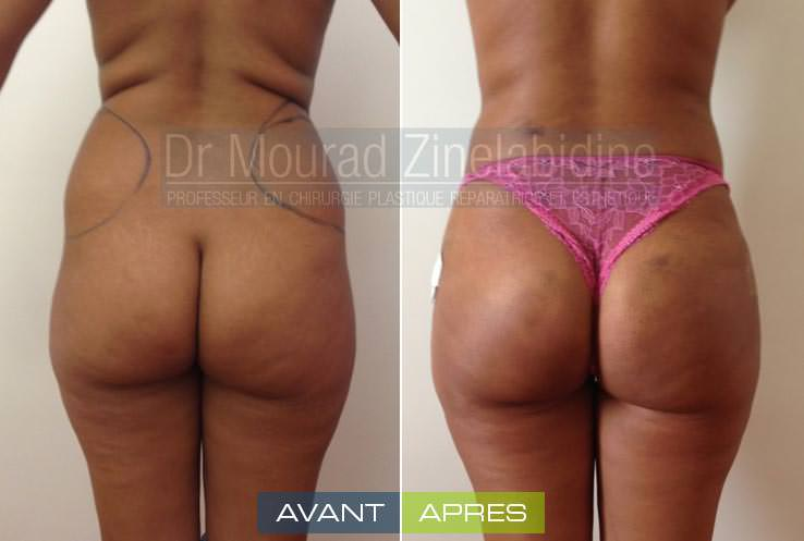 lipofilling-fesses-tunisie-photos-avant-apres-chirurgie-esthetique