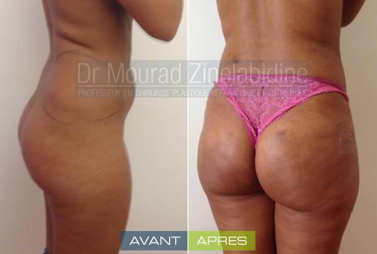 lipofilling-fesses-tunisie-avant-apres-chirurgie-esthetique