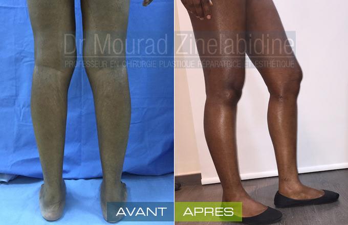 lipofilling-mollets-tunisie-photo-avant-apres-chirurgie-esthetique