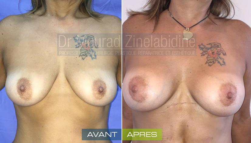 avant aprés lipofilling mammaire tunisie