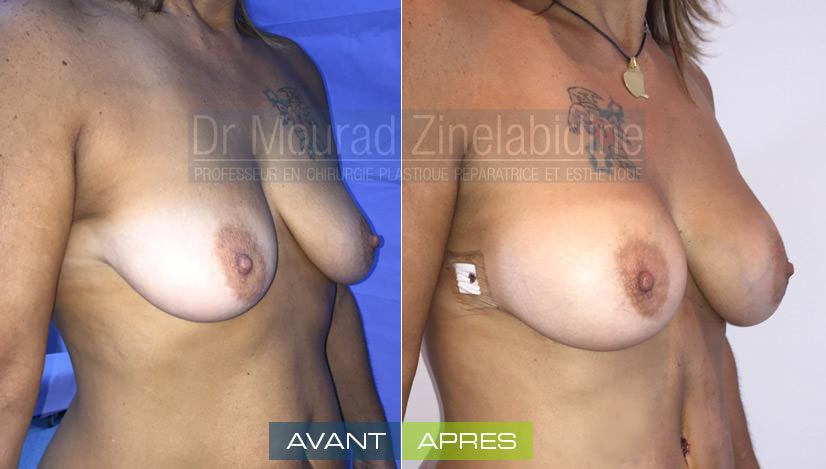 lipofilling-mammaire-tunisie-photo-avant-apres-chirurgie-esthetique