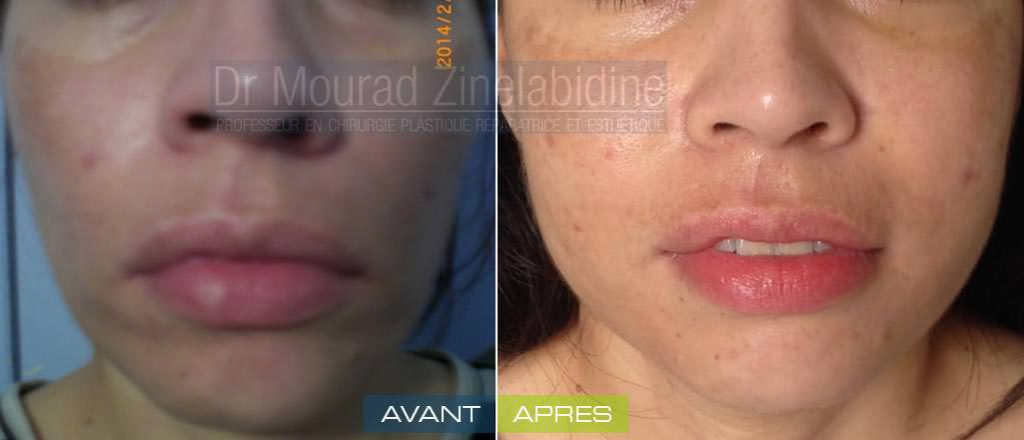 lipofilling-visage-tunisie-photo-avant-apres-chirurgie-esthetique