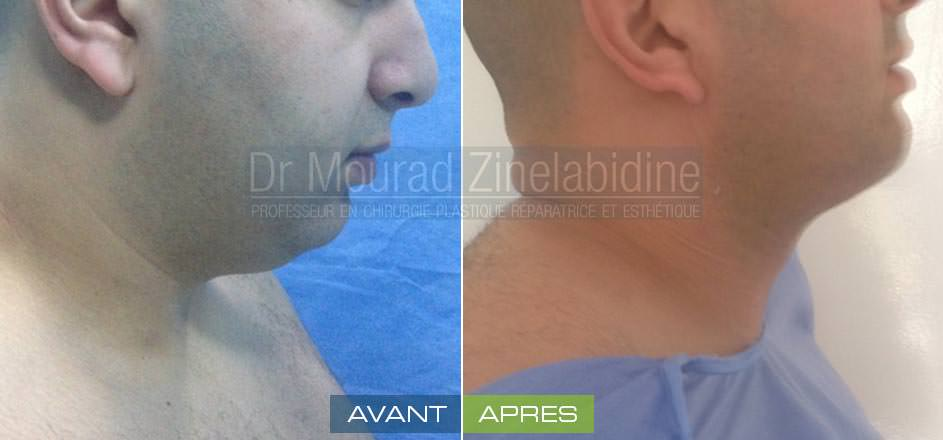 liposuccion-cou-tunisie-photo-avant-apres-chirurgie-esthetique