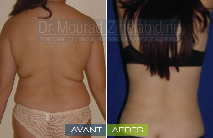 liposuccion-tunisie-photo-avant-apres-chirurgie-esthetique
