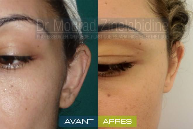 otoplastie-tunisie-photo-avant-apres-chirurgie-esthetique