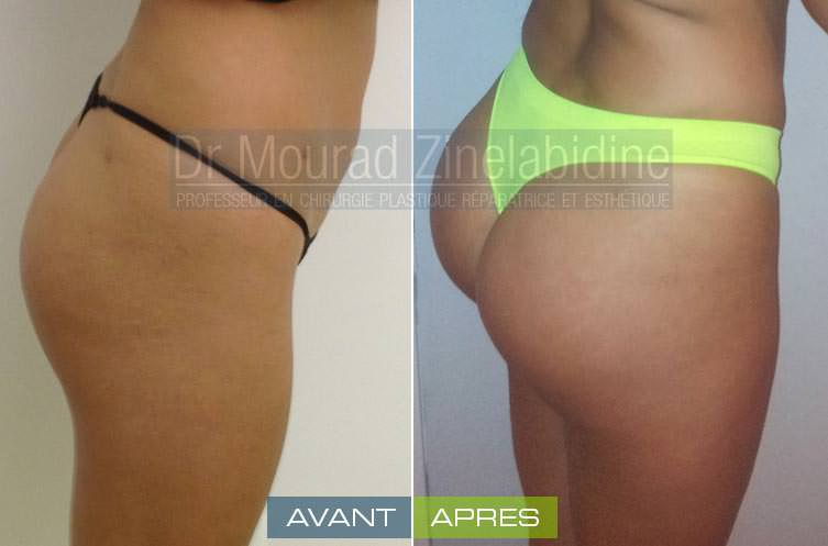 augmentation-fesses-prothese-tunisie-avant-apres-chirurgie-esthetique