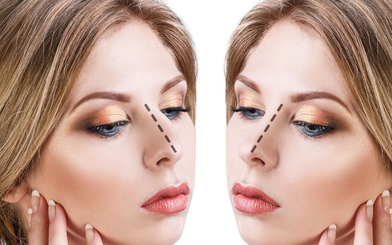 rhinoplastie tunisie-photo-avant-apres-chirurgie-esthetique
