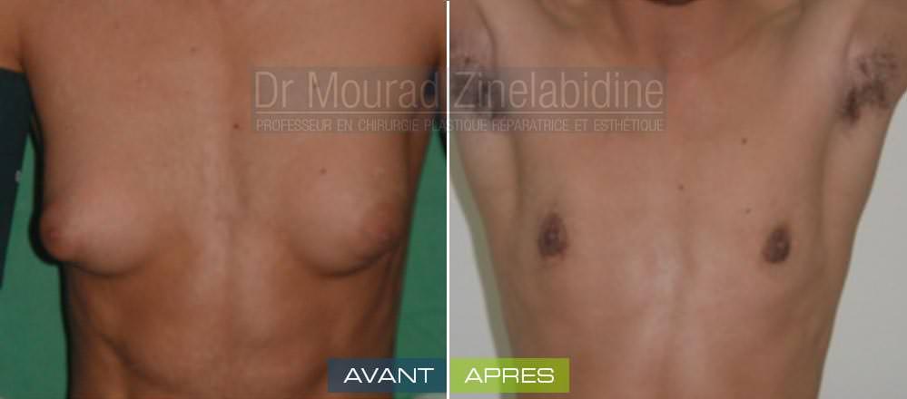 gynecomastie-tunisie-chirurgie-esthetique-avant-apres
