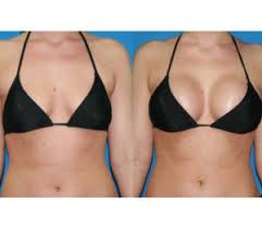 lipofilling-mammaire-tunisie-avant-apres