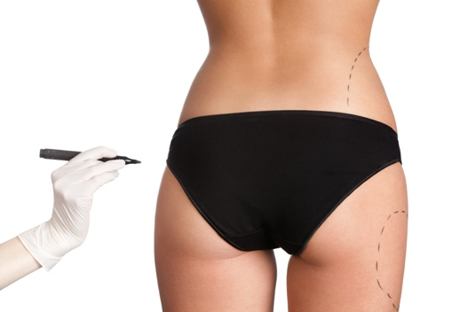 chirurgie-fesses-tunisie-implants