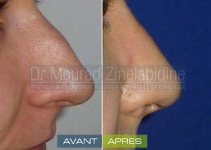 rhinoplastie-tunisie-avant-apres