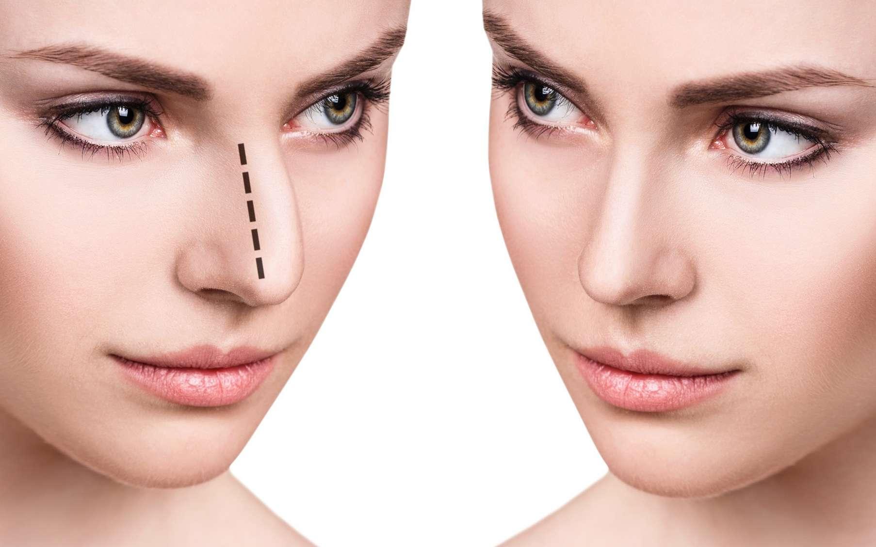 rhinoplastie-chirurgie-esthétique-plastique-prix-tunisie-fontionnelle-nez-operation